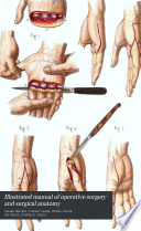 Illustrated Manual of Operative Surgery and Surgical Anatomy