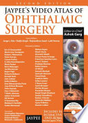 Jaypee s Video Atlas of Ophthalmic Surgery