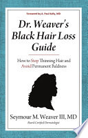 Dr Weaver S Black Hair Loss Guide How To Stop Thinning Hair And Avoid Permanent Baldness