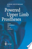Powered Upper Limb Prostheses