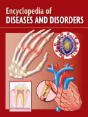 download ebook encyclopedia of diseases and disorders pdf epub