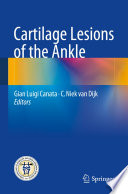 Cartilage Lesions Of The Ankle