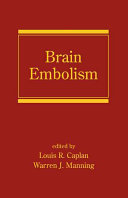 Brain Embolism : embolism, this guide analyzes the causes,...