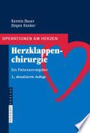 Herzklappenchirurgie