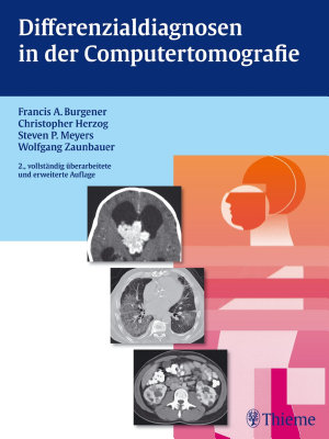 Differenzialdiagnosen in der Computertomografie PDF