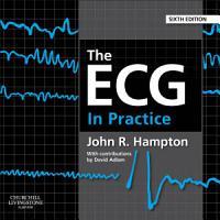 The ECG in Practice PDF