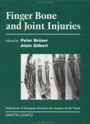 Finger Bone And Joint Injuries Book PDF