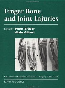 Finger Bone and Joint Injuries