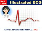 Illustrated ECG (Fast Review)