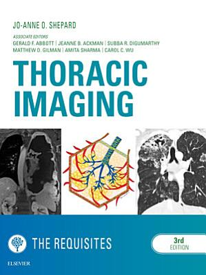 Thoracic Imaging The Requisites E Book PDF