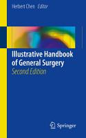 Illustrative Handbook of General Surgery PDF
