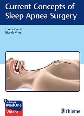 Current Concepts of Sleep Apnea Surgery PDF