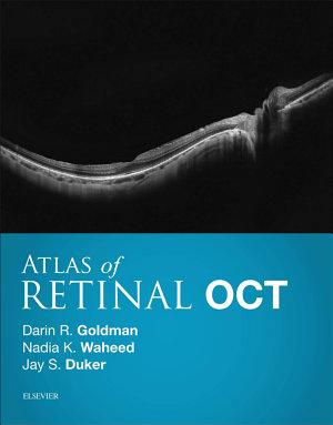 Atlas of Retinal OCT E-Book