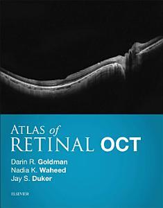 Atlas of Retinal OCT E Book