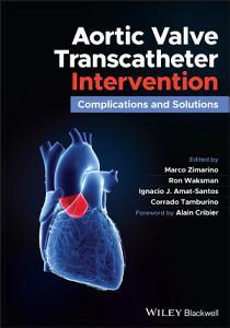 Aortic Valve Transcatheter Intervention