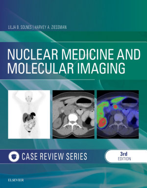 Nuclear Medicine and Molecular Imaging  Case Review Series E Book PDF