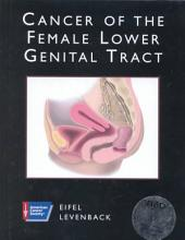 Cancer of the Female Lower Genital Tract: Volume 1