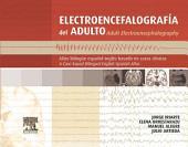 Electroencefalografía del adulto: Atlas bilingüe español-inglés basado en casos clínicos