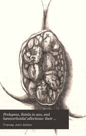 Prolapsus, fistula in ano, and hæmorrhoidal affections: their pathology and treatment