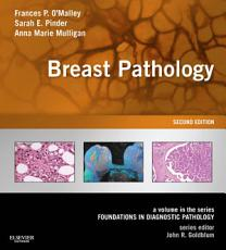 Breast Pathology E-Book