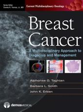 Breast Cancer: A Multidisciplinary Approach to Diagnosis and Management
