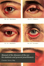 Manual of the diseases of the eye for students and general practitioners
