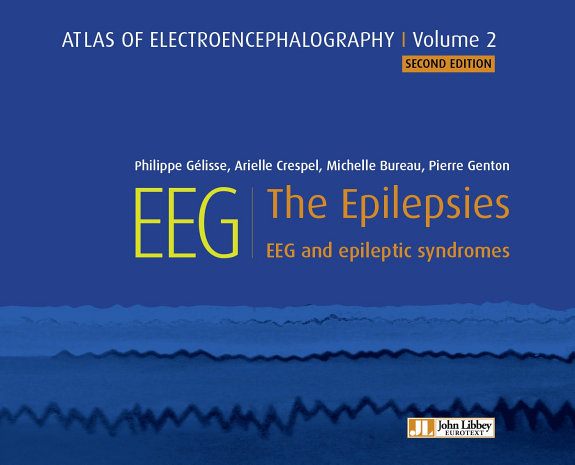 EEG   The Epilepsies PDF