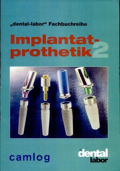 Implantatprothetik PDF