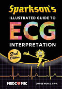 Sparkson s Illustrated Guide to ECG Interpretation  2nd Edition PDF