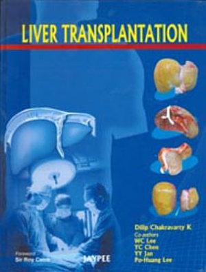 Liver Transplantation PDF