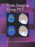 Brain Imaging Using PET PDF