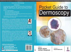 Pocket Guide to Dermoscopy