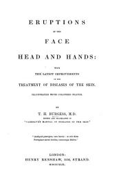 Eruptions of the Face, Head, and Hands: With the Latest Improvements in the Treatment of Diseases of the Skin