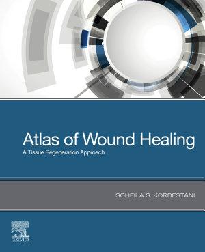 Atlas of Wound Healing   E Book PDF