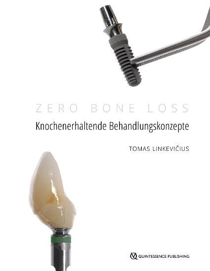 Zero Bone Loss  Knochenerhaltende Behandlungskonzepte PDF