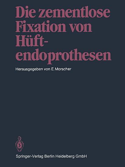 Die zementlose Fixation von H  ftendoprothesen PDF
