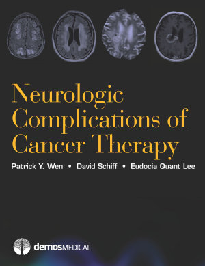 Neurologic Complications of Cancer Therapy PDF