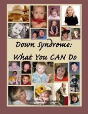 Down Syndrome PDF