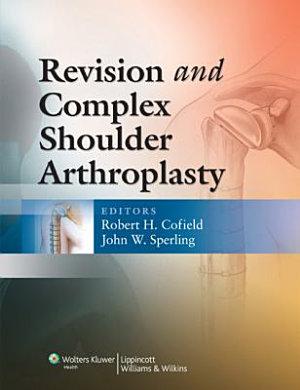 Revision and Complex Shoulder Arthroplasty