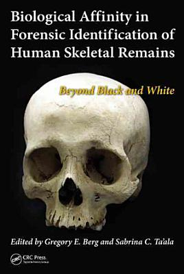 Biological Affinity in Forensic Identification of Human Skeletal Remains