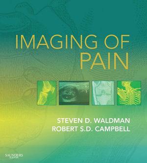 Imaging of Pain E-Book