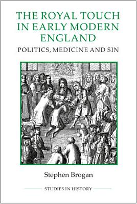 The Royal Touch in Early Modern England