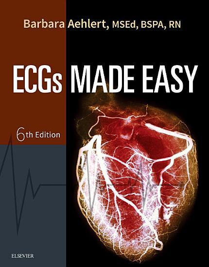 Pocket Guide for ECGs Made Easy   E Book PDF
