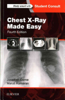 Chest X Ray Made Easy PDF