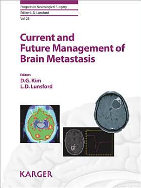 Current and Future Management of Brain Metastasis PDF