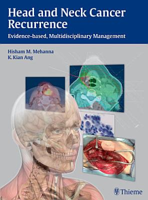 Head and Neck Cancer Recurrence