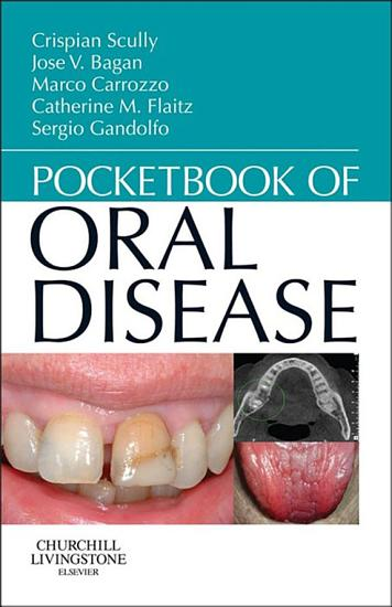 Pocketbook of Oral Disease   E Book PDF