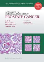 Advances in Surgical Pathology  Prostate Cancer PDF