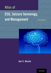 Atlas of EEG, Seizure Semiology, and Management: Edition 2