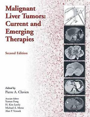 Malignant Liver Tumors PDF